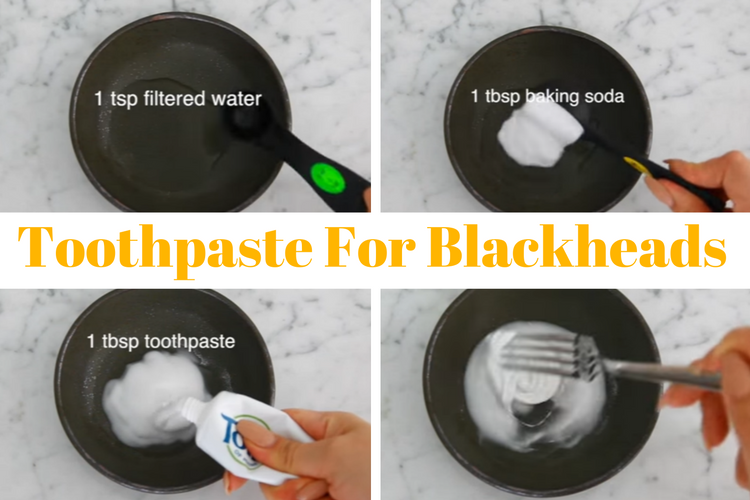 remove blackheads with toothbrush