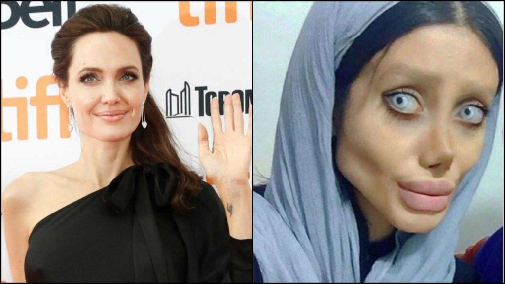 Sahar Tabar, Reveals The Truth Behind Her Surgeries